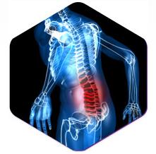 Back pain Seattle