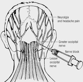 Occipital Nerve Block Seattle