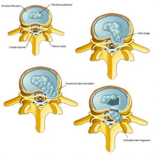 herniated disc 3